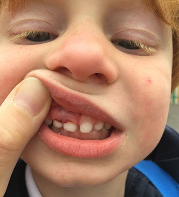 diente-nico-golpe